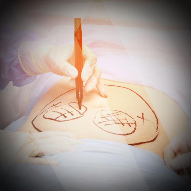 Prix abdominoplastie circulaire turquie